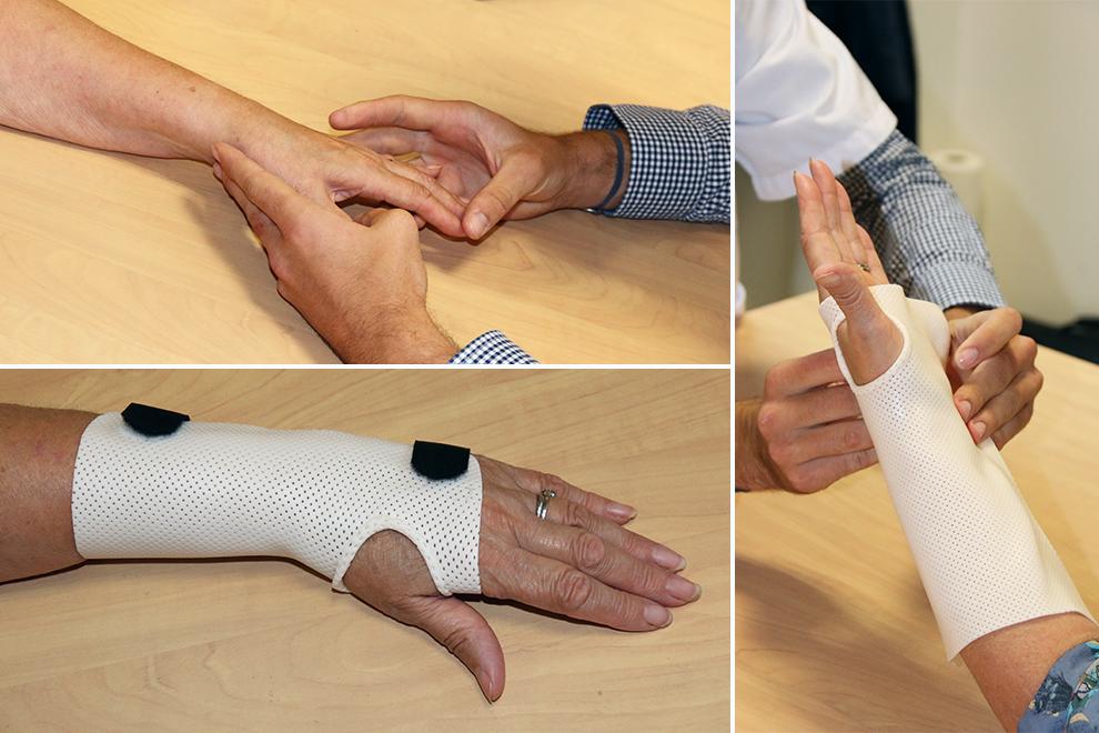 Des orthèses de la main et du poignet réalisées sur mesure
